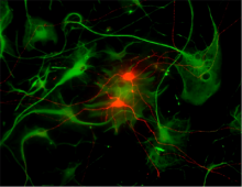 Human pluripotent stem cell-derived retinal ganglion cells, shown here in red, were co-cultured with astrocytes, shown in green.